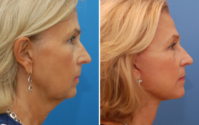 Facelift / Necklift Results