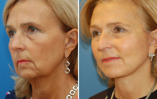 Before And After Facelift / Necklift Surgery