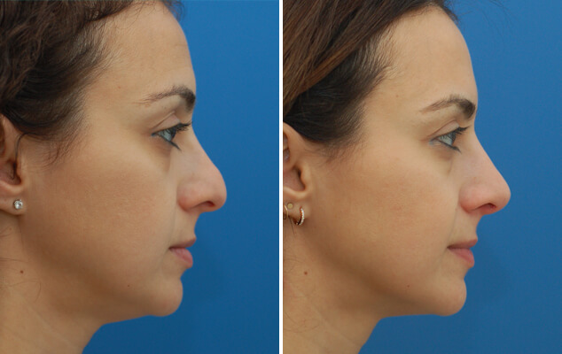 Nasal Surgery Before And After Side Image