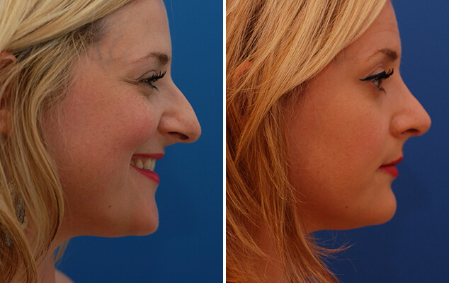Nasal Surgery Before And After Front View