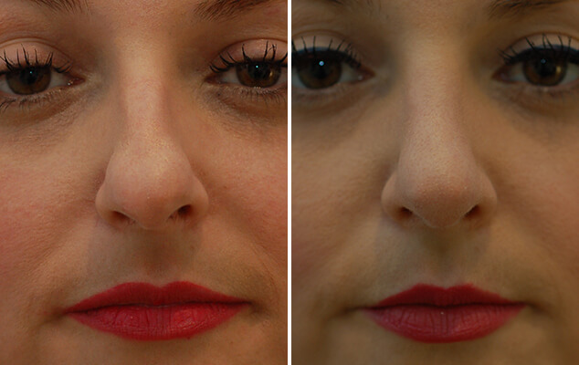 Nasal Surgery Before And After Side View