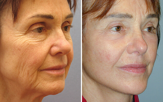 Facelift And Neck Lift Surgery Results