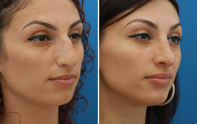 Before And After Nasal Reshaping Surgery