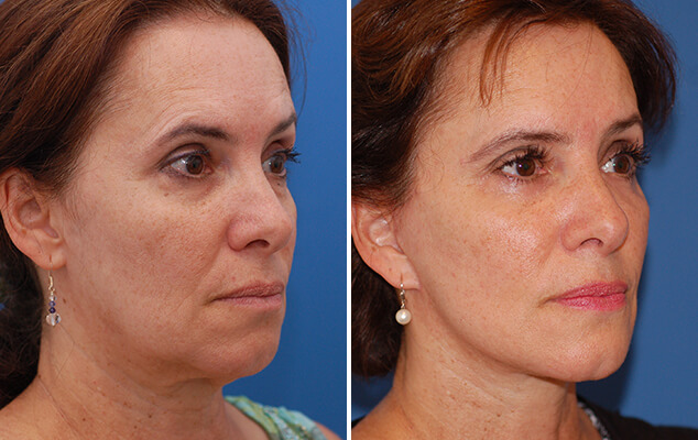 Before And After Necklift / Facelift Surgery