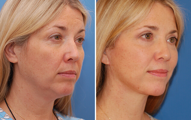 Necklift And Facelift Surgery Before And After Front View