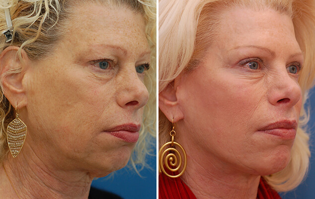 Before And After Necklift / Facelift