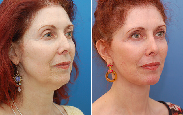 Necklift / Facelift Before And After Front Image