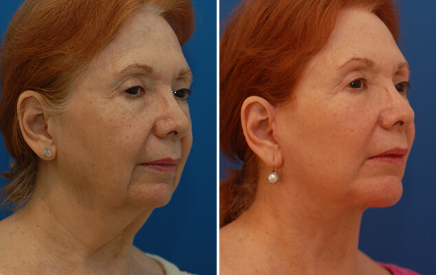 Neck And Facelift Before And After Front View