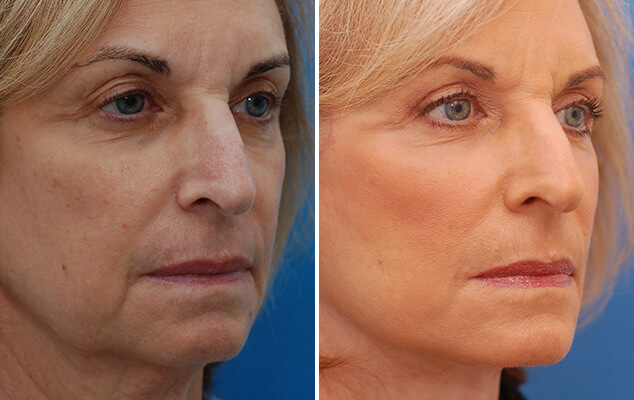 Neck And Facelift Surgery Results