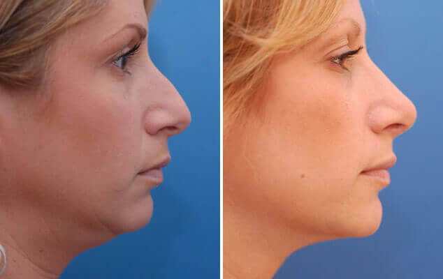 Rhinoplasty Results