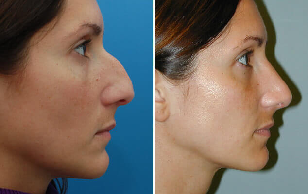 Rhinoplasty Before And After Side Image