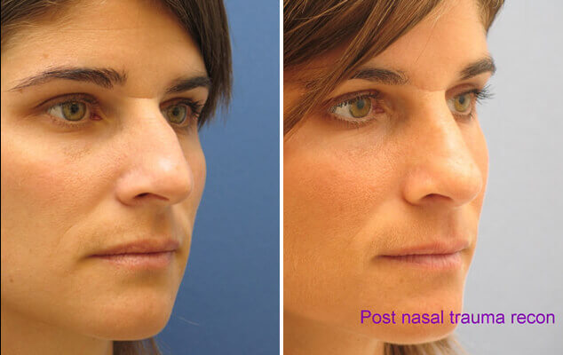 Nose Surgery Results