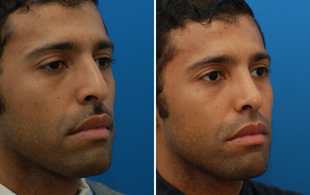 Nose Reshaping Before And After