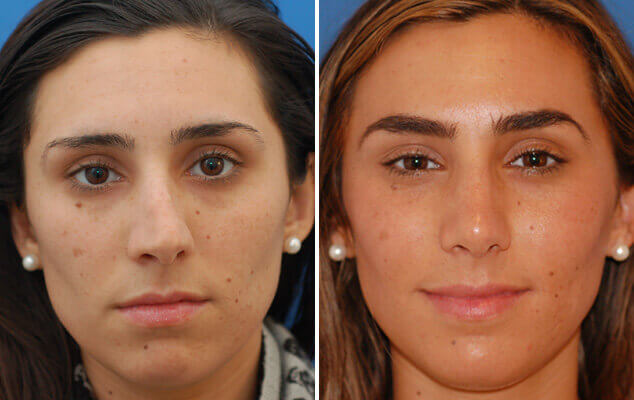 Nasal Surgery Before And After