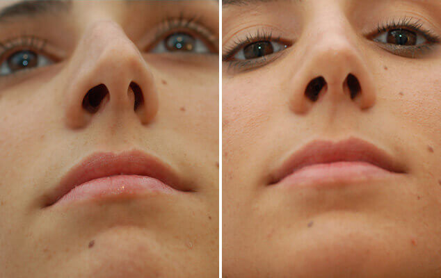 Nasal Surgery Results