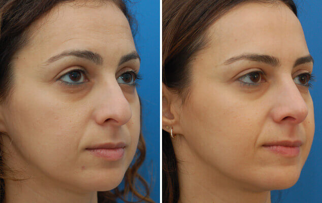 Nasal Surgery Before And After Quarter Image
