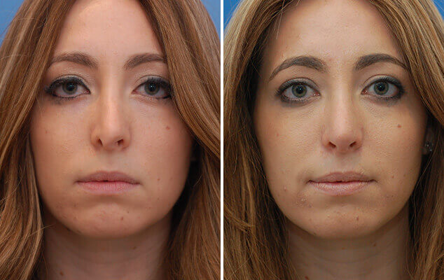 Nasal Reshaping Before And After Front Image