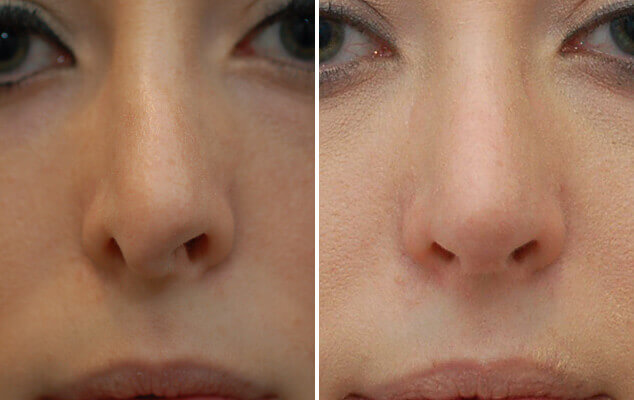 Nasal Reshaping Before And After Front View