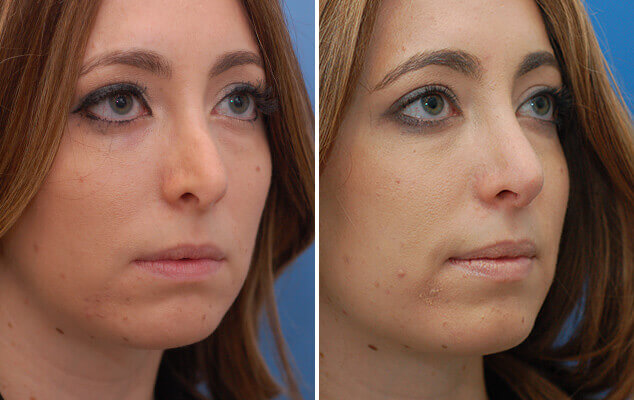 Nasal Reshaping Before And After Quarter View