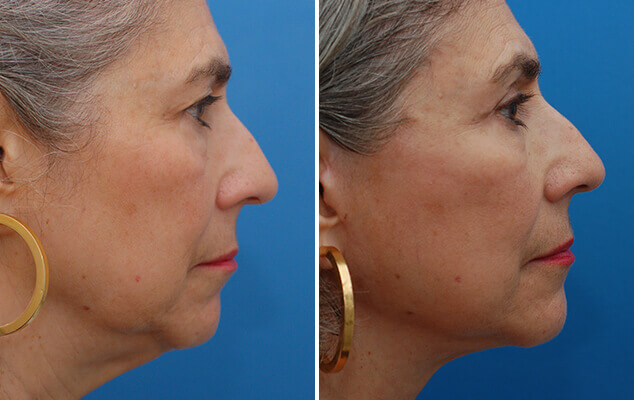 Neck And Facelift Surgery Before And After