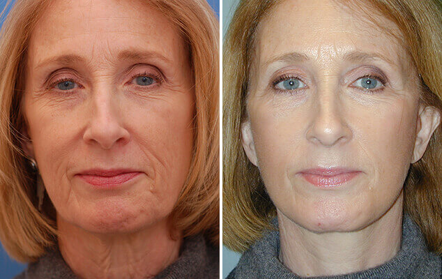 Before And After Necklift And Facelift Surgery