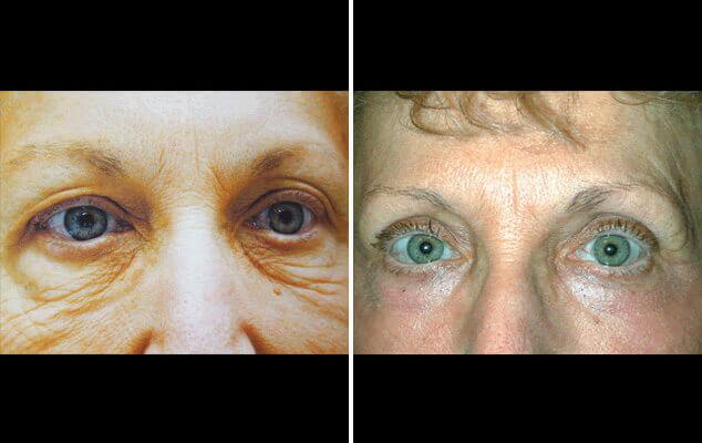 Blepharoplasty Results