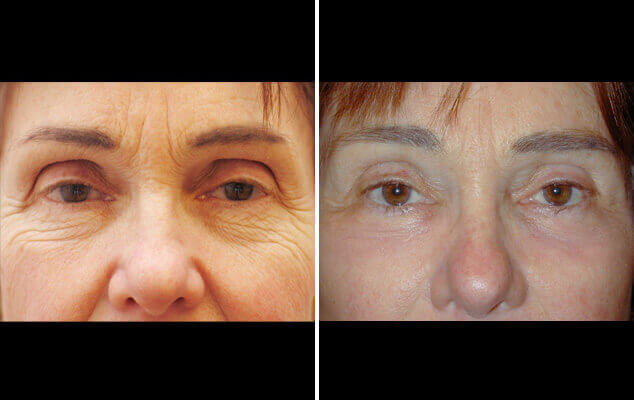 Eyelid Repair Before And After