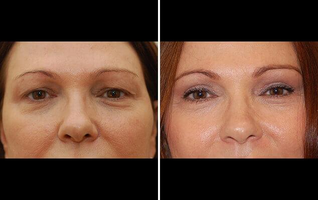 Eyelid Repair Results