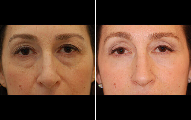 Before And After Eyelid Repair