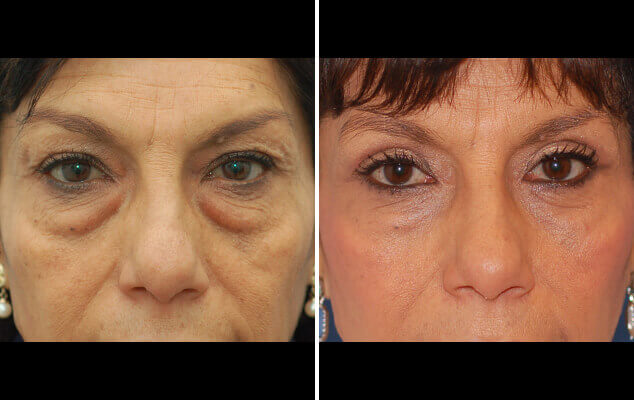 Eyelid Reshaping Surgery Before And After