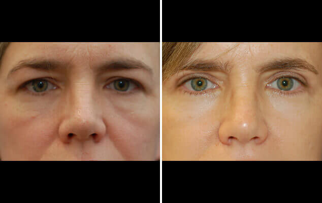 Eyelid Reshaping Surgery Results