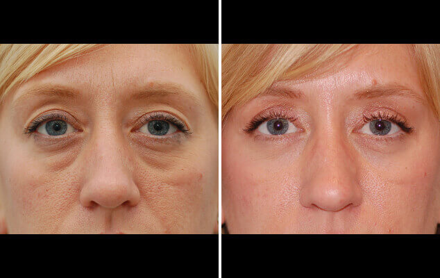Before And After Eyelid Reshaping Surgery