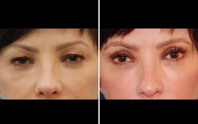 Eyelid Reshaping Before And After