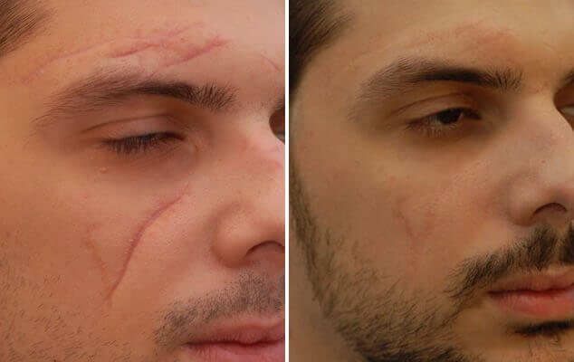 Before And After Scar Revision