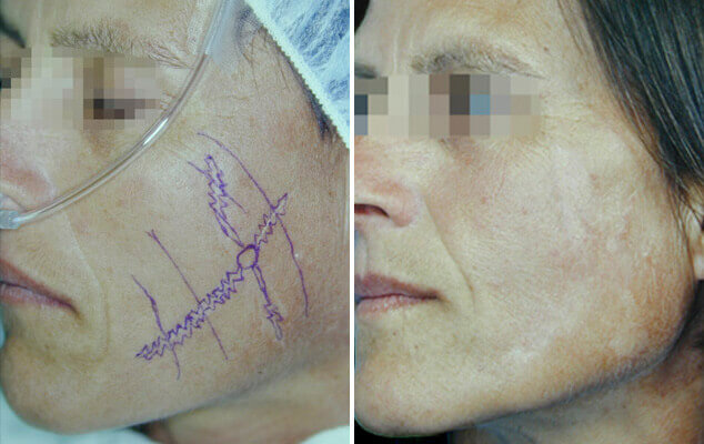 Scar Removal Results