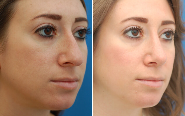 Nasal Reshaping Surgery Before And After