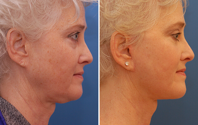 Necklift And Facelift Before And After Front Image