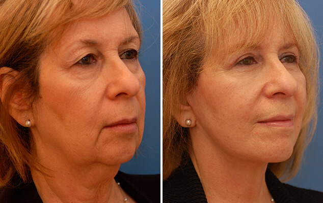 Necklift And Facelift Results