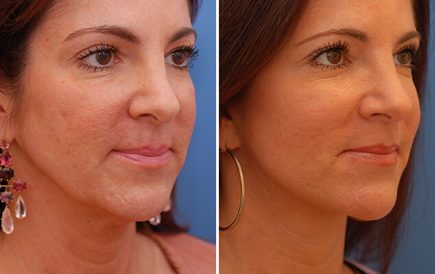 Necklift And Facelift Surgery Before And After