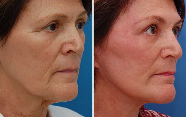 Neck And Facelift Before And After