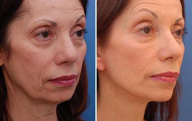 Necklift / Facelift Before And After